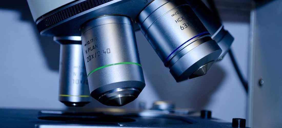 Diagnostic - Analize candidoza
