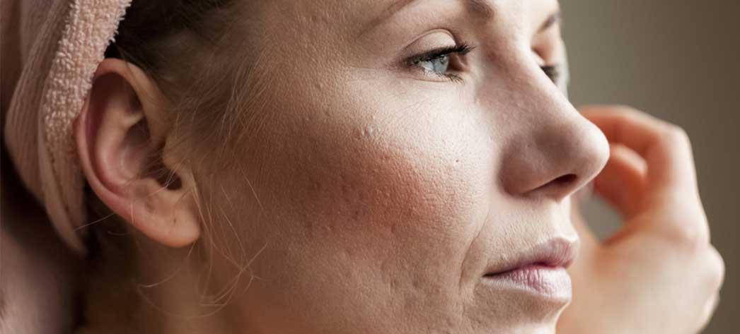 Ce este dermatita atopica