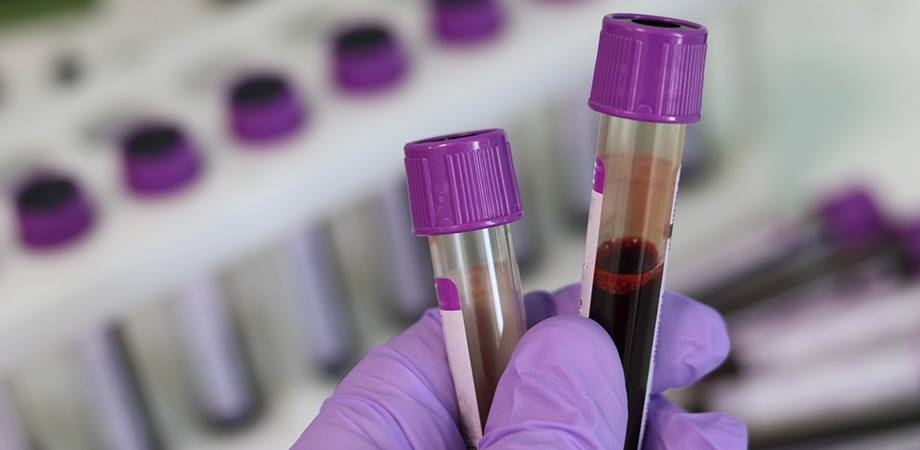 teste sange malformatii congenitale