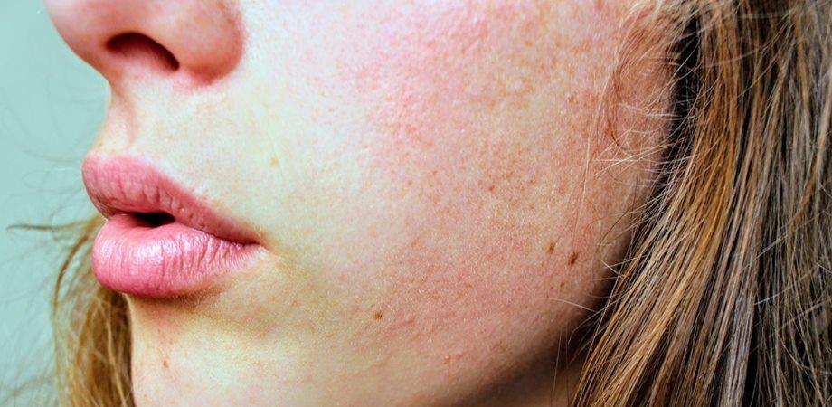 tratamentul petelor întunecate cu varicoză)