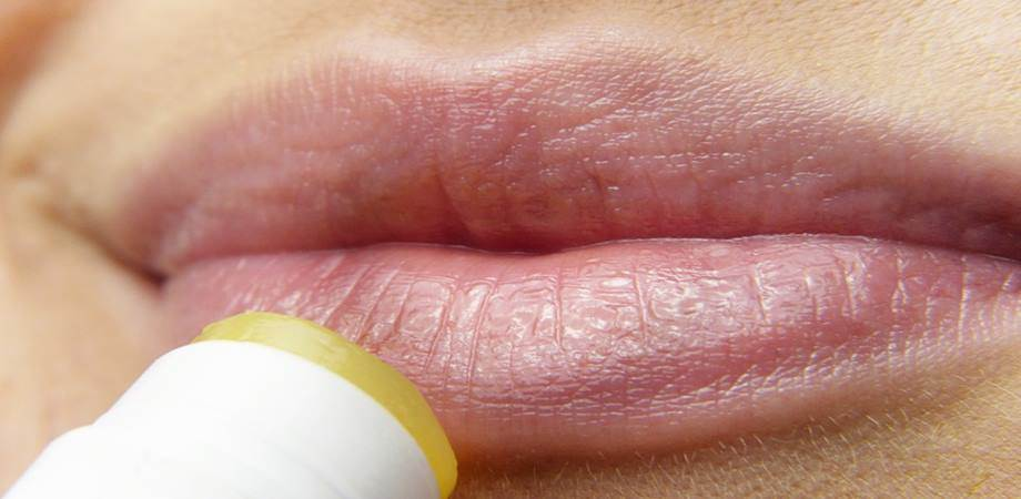 tratament herpes oral